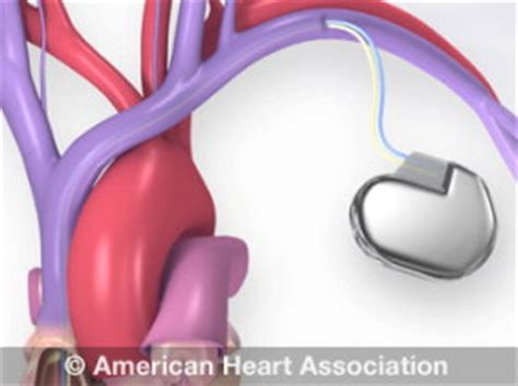 Electric Blankets And Pacemakers by Devices That May Interfere With Pacemakers