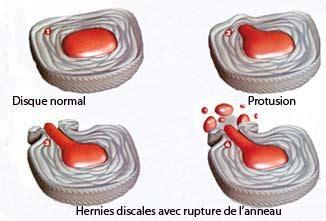 hernie discale maladies rhumatologiques m 233 decine