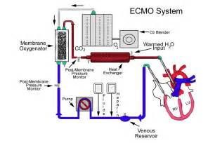 ecmo machine cost fda panel 30 year ecmo therapy should be reclassified