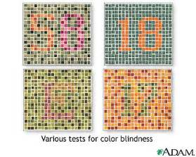 symptoms of color blindness khsenglish9 w