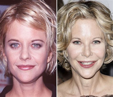 Meg Ryan Before After