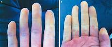Primary Raynaud S Phenomenon Nejm
