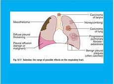 left lung base infiltrate