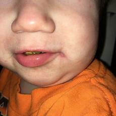 herpes bei babys is this herpes on my babies babycenter