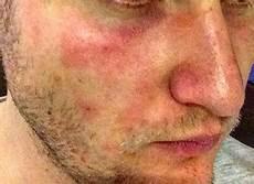 Welche Hauterkrankung Kann Das Sein Gesicht