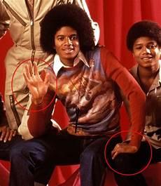 Michael Jackson Vitiligo - my view on michael jackson s skin change elosia