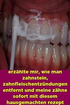 Ein Befreundeter Zahnarzt Erz 228 Hlte Mir Wie Zahnstein