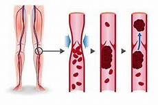 Beinschmerzen Im Liegen - marcumar medikament wirkstoff anwendung nebenwirkungen