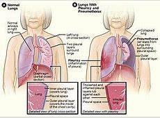 pain in lung when inhaling