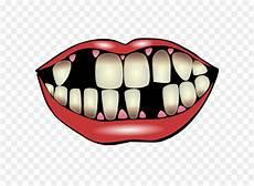 Joker Tersenyum Gigi Clip Gambar Gigi Unduh Senyum