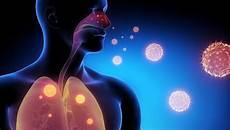 Grippe Symptome 21 Typische Anzeichen Erkennen Was Tun