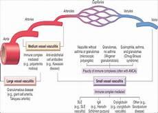 vasculite dei piccoli vasi infiammazione cronica
