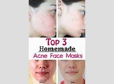 recipe for homemade face mask