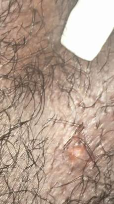 what does bump on pubic hair look like could it be an ingrown hair or herpes genital herpes simplex forums patient