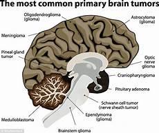 Hirntumor Symptome Auge - what is menounos s brain tumor daily mail
