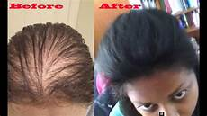 how to make thin hair thicker using hair pieces youtube