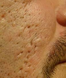 trou peau visage homme healthy n fit tips to treat holes on