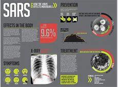 signs and symptoms of coronavirus