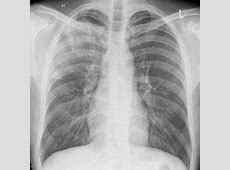 pneumonia on x ray images
