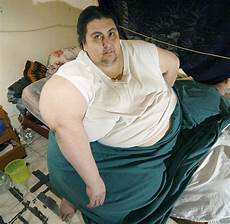 Eingriff In Mexiko 435 Kilo Schwerster Mann Der Welt
