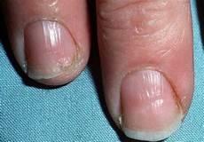 fingernägel längsrillen ursache fingern 228 gel was alles an ihnen ablesen kann