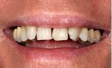 haus gekauft und unglücklich zahnarzt bochum herne zahnarzt bochum herne 196 sthetik
