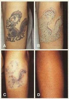 tattoo removal washington institute of dermatologic