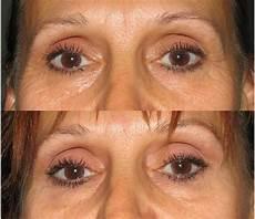 botox cosmetic medispa