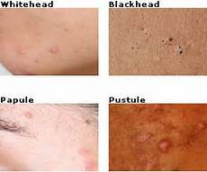 how to get rid of whiteheads a quick treatment guide