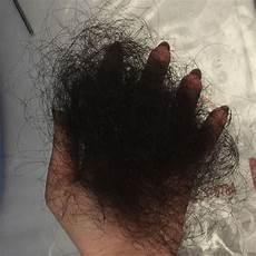 Extrem Starker Haarausfall Mit 15 15 Jahre Alt