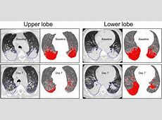 right middle lobe infiltrate treatment