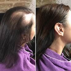 Soins Capillaires Lorsque L On Perd Anormalement Ses Cheveux