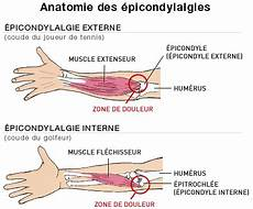 Douleur Poignet Droit Traitement De La Tendinite Du Coude Reflex Osteo