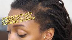 black castor oil hair growth before and after product review jamaican black castor oil for hairline growth youtube