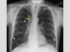x ray of lung cancer