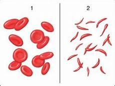 globuli bassi alimentazione globuli bassi quali sono le cause e le patologie