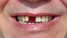 dents qui se déchaussent photos pourquoi faut il remplacer une dent manquante