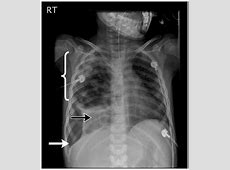 right middle lobe pneumonia icd 10
