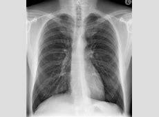 bronchitis x ray vs normal