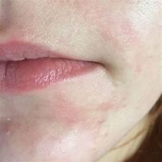 Rote Stellen Und Pickel Im Gesicht Gesundheit Haut Akne