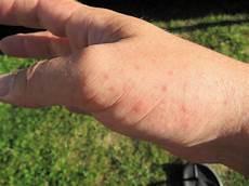 dengue fieber tonga reisebericht quot denguefieber quot