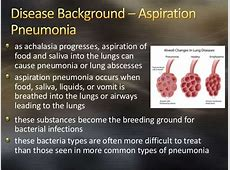 aspiration pneumonia in the elderly