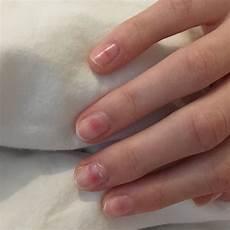 rote flecken unter den fingern 228 geln was tun gesundheit