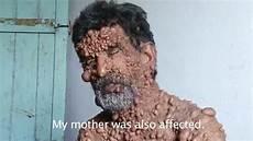 trou peau visage homme l homme bulle maladie
