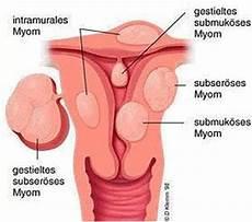 Myom In Der Gebärmutter - maja langsdorff myome embolisieren
