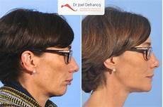 exercises to correct overbite paola deep bite overbite lower jaw too short overbite deep bite jaw surgery dr jo 235 l