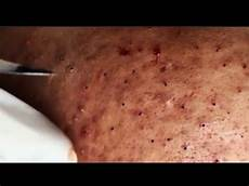 Blackhead Removal On Cyst Pimple Popper