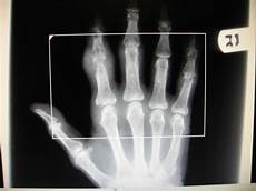diagnostic imaging case report a 72 year old reported with right and swelling