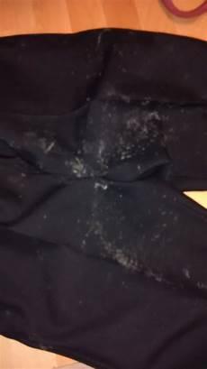 schimmel an kleidung ist das schimmel auf meiner anzughose hose anzug