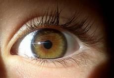 yeux marron vert this is central heterochromia right heterochromia